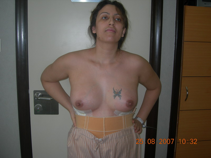 Post-Op Breasts1