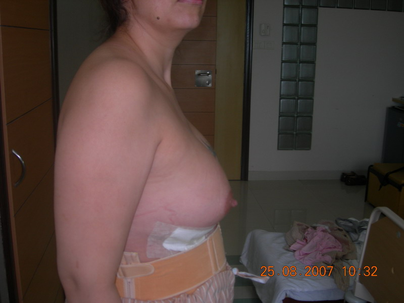 Post-Op Breasts3