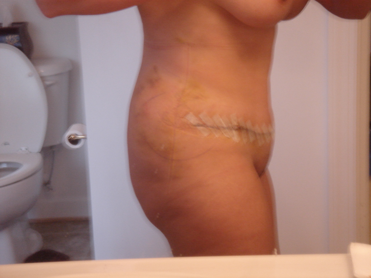 Day 5 post op side