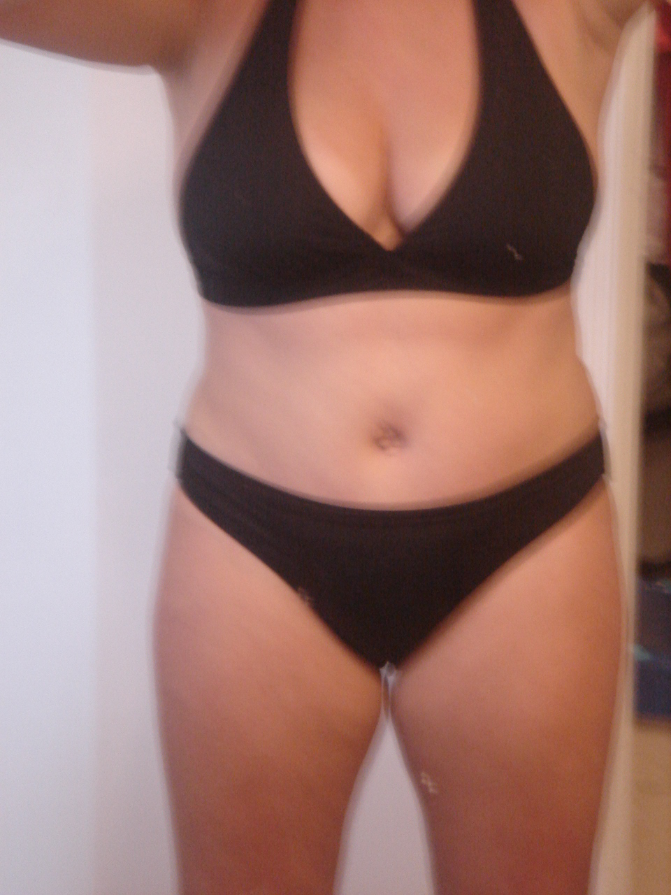 Day 17 post op Bikini