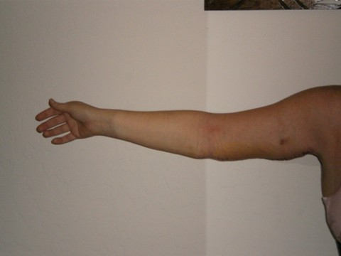 Right Arm 7 Days Post Op