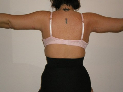 Back of Arms 7 Days Post Op