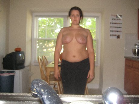 Full frontal 2 months post op