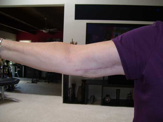 Right arm hypertrophied scar