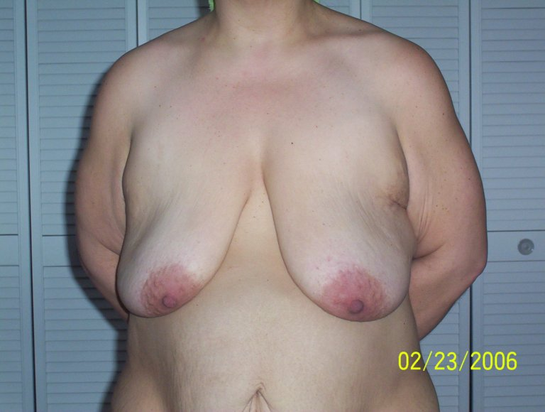 preop breasts