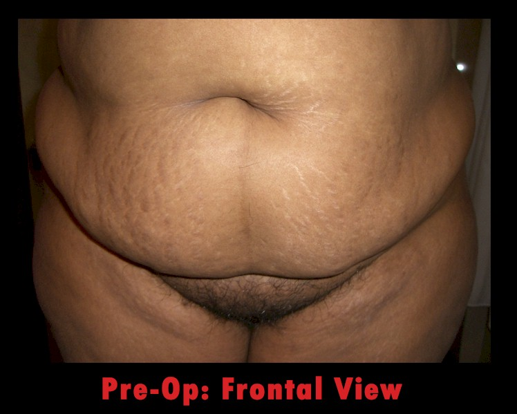 PreOp, Frontview