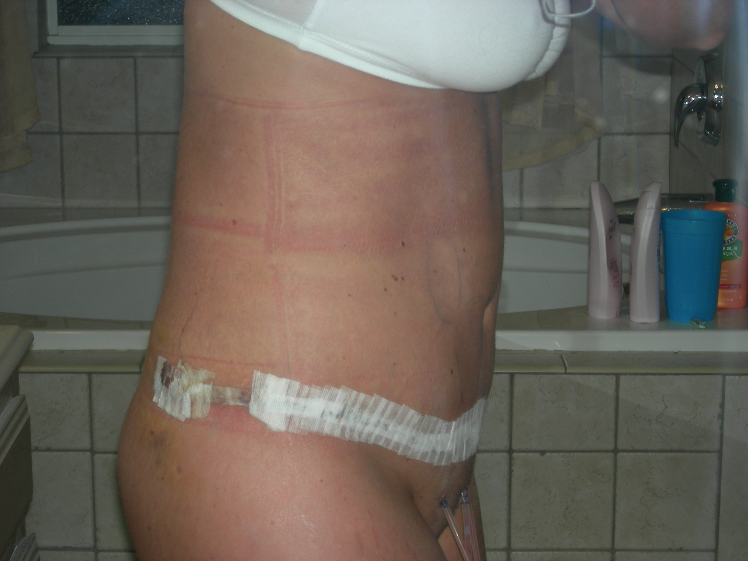 Post-op side view