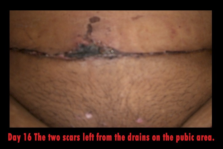 Scars from the Drains