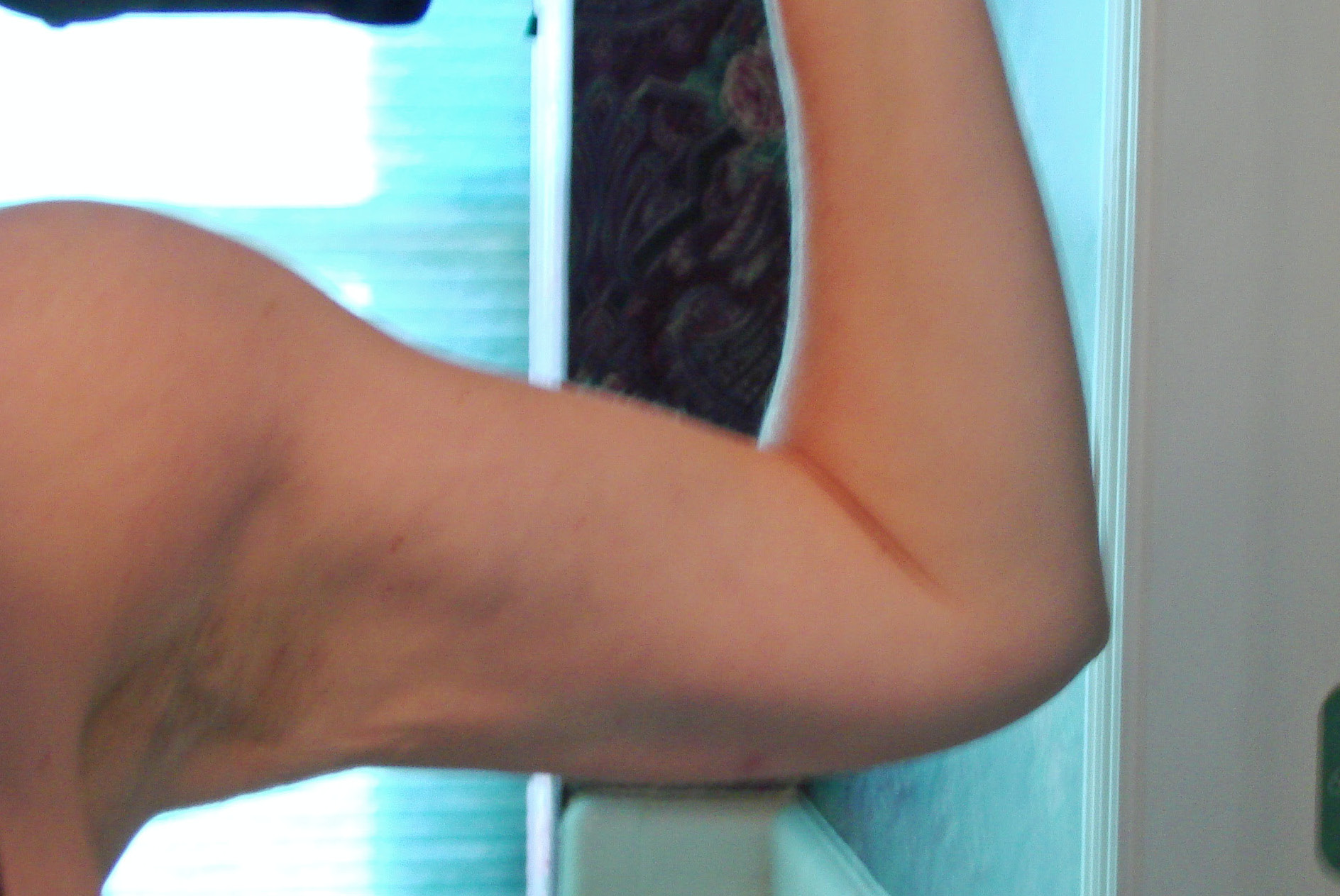 7 Months Post SmartLipo-Right Arm 1