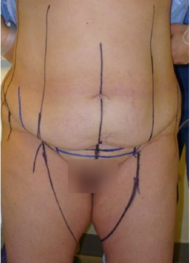 surgical markings 12-21