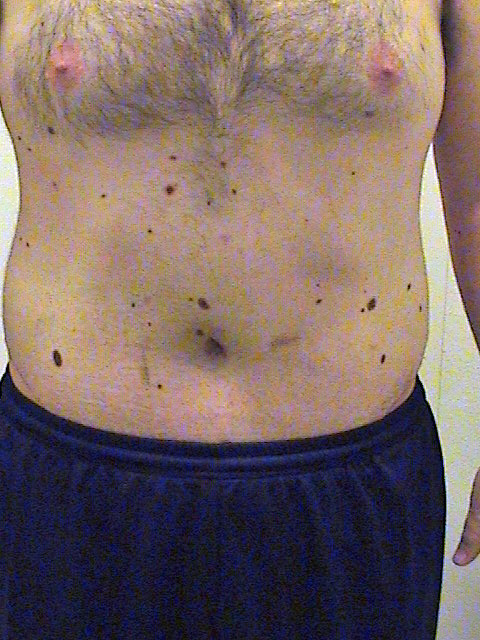 Post Op Vaginoplasty http://www.makemeheal.com/pictures/tummy-tuck-male/19-day-post-op-p59860
