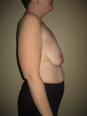 Breast Lift Pre-Op Side