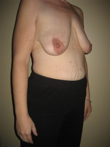 Breast Lift Pre-Op Angle