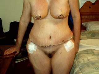 post op 7 days some tummy swelling