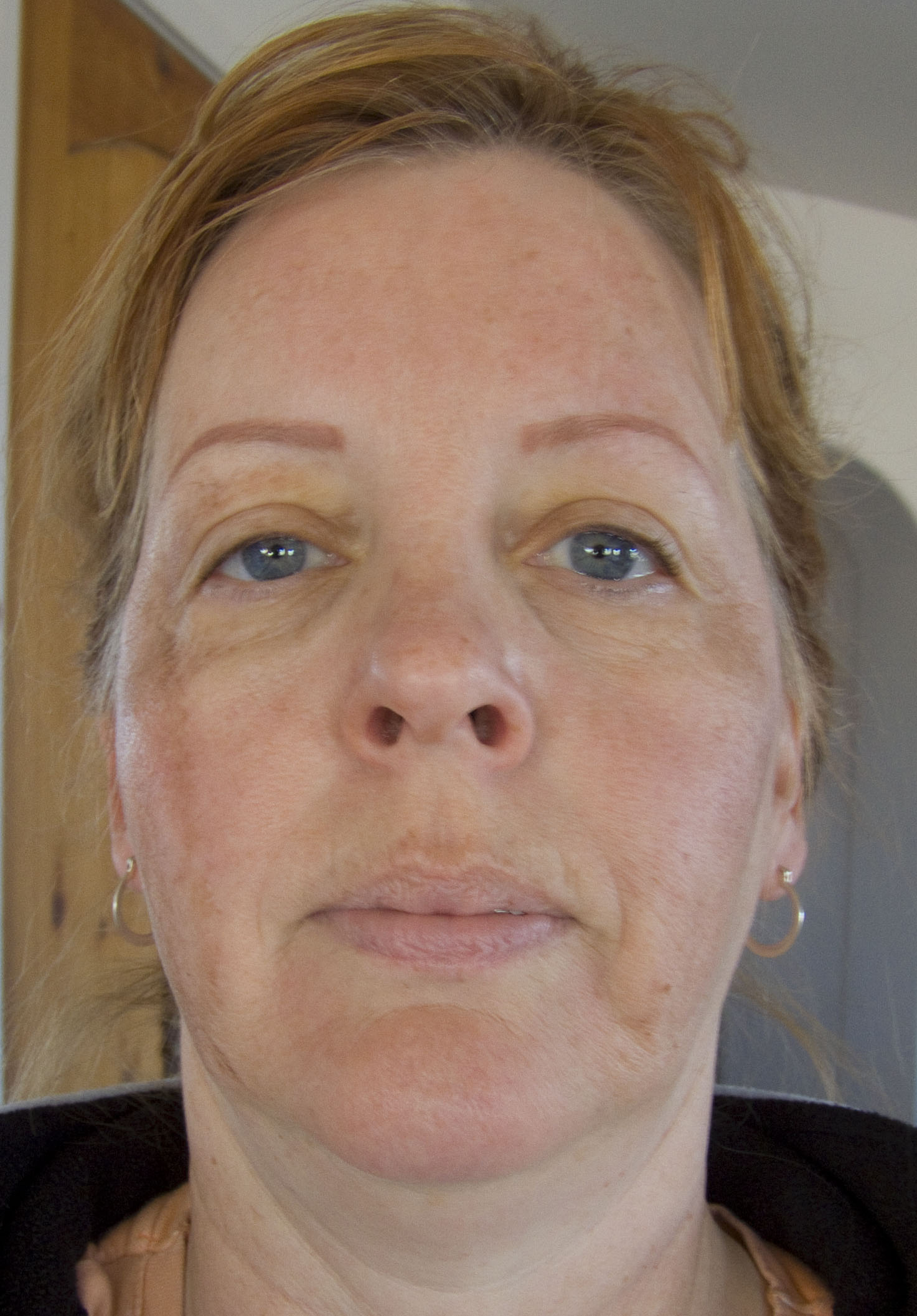 Full Face on Day Two of Chemical Peel