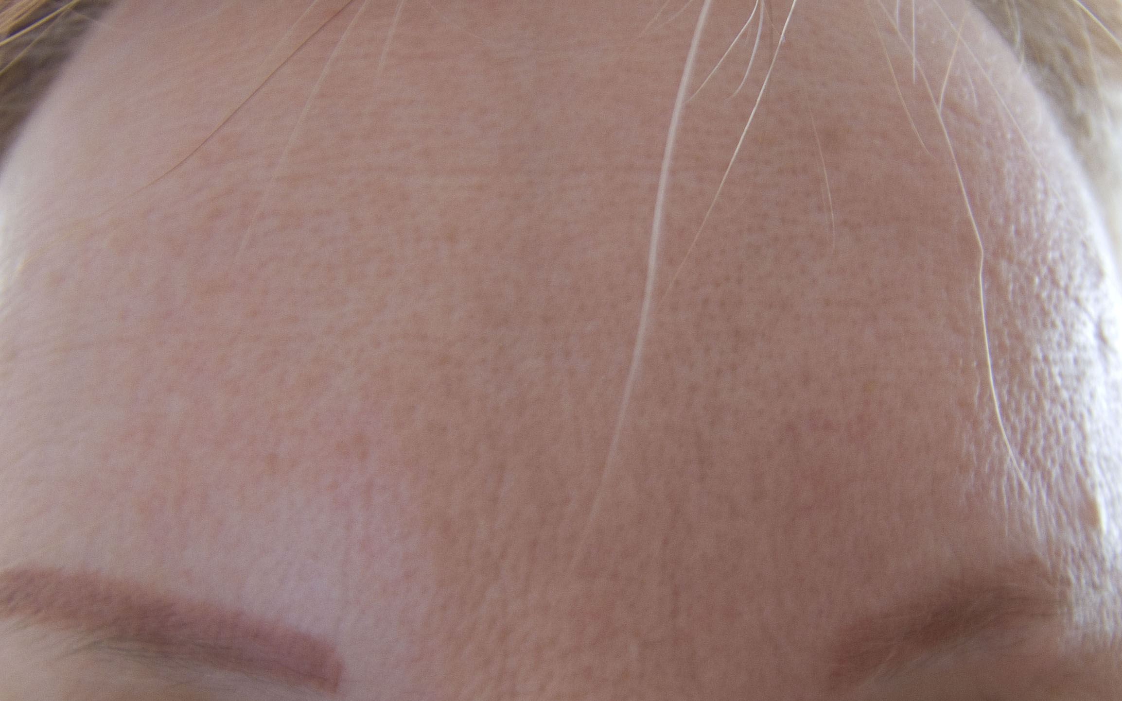 Forehead Prior to Peel