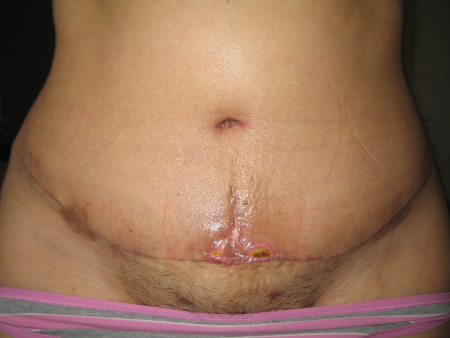 Full view of scar - 4 wks po-op