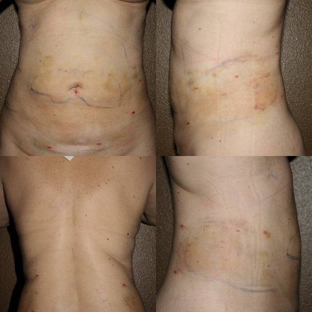 Day #2 after Smart Lipo