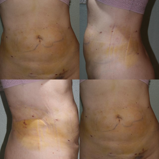 Day #6 after Smart Lipo