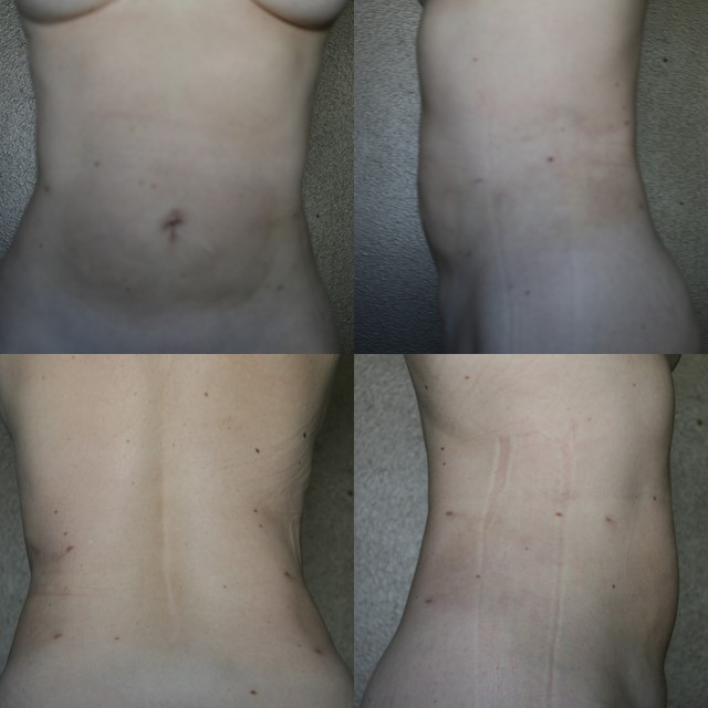 Day #21 after Smart Lipo