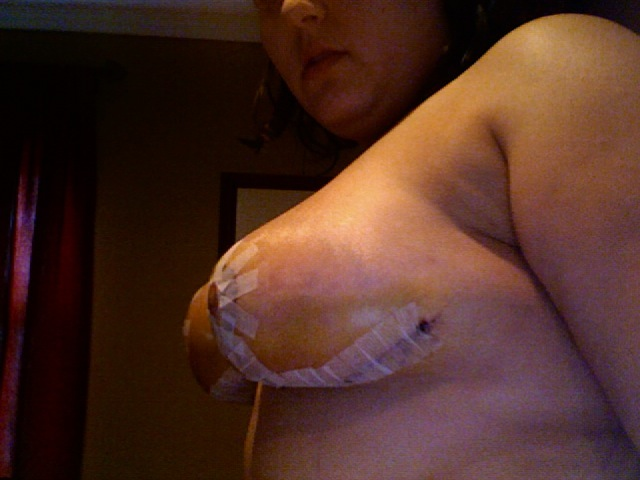 side view 1 wk post op
