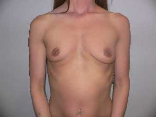 before implants