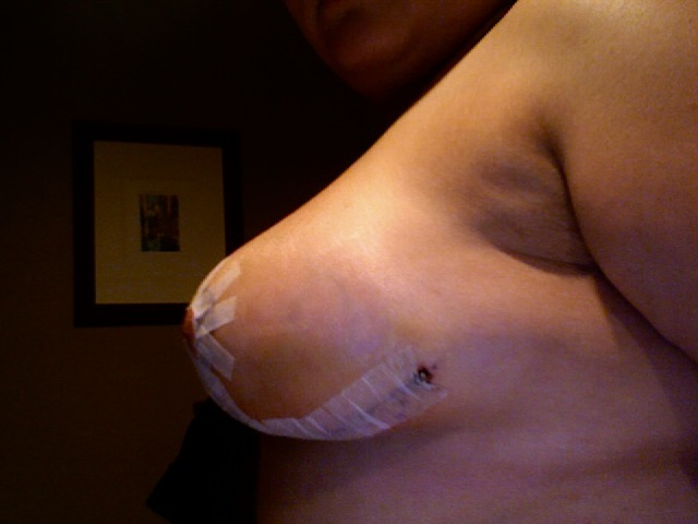 2 weeks post op