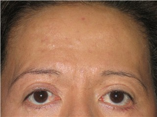 Indi : Before Brow Lift & Upper Eye repair (18 Nov 05)