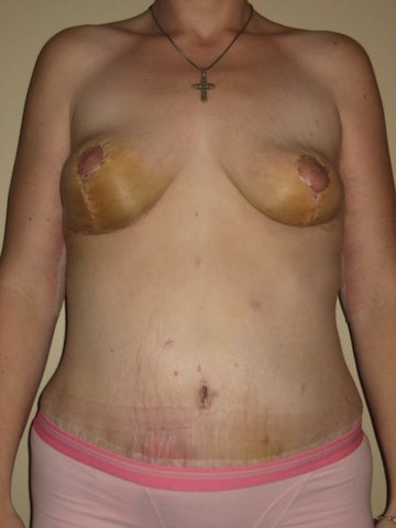 Breast Lift/Tummy Tuck  2 Week Post-Op