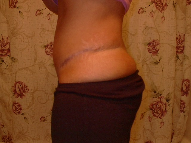 another scar pic @ 11 months