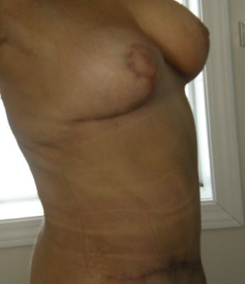6 weeks post-op