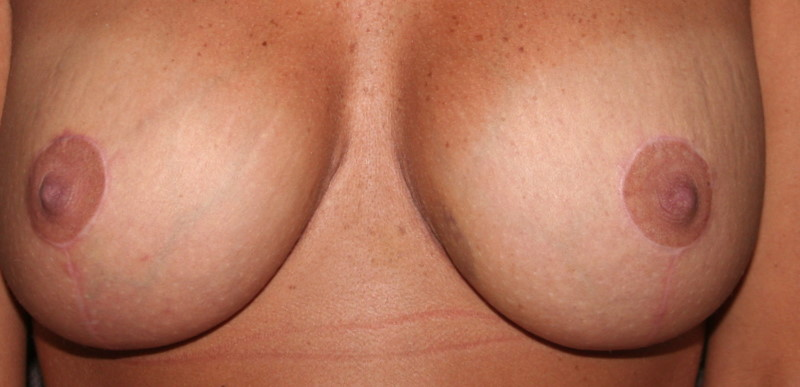 3m Breast Lift/After Revision to my