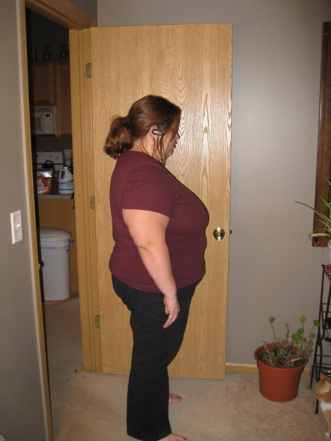 Pre Gastric Bypass
