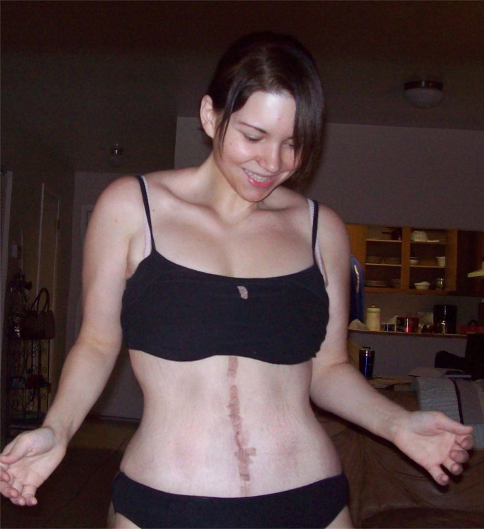 Swelling The Pubic Mound Tummy Tuck Abdominoplasty Pictures