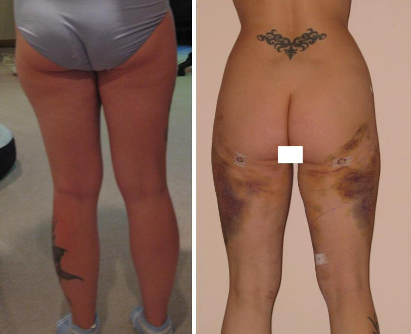 Before and After 2 (8 Days Post Op)