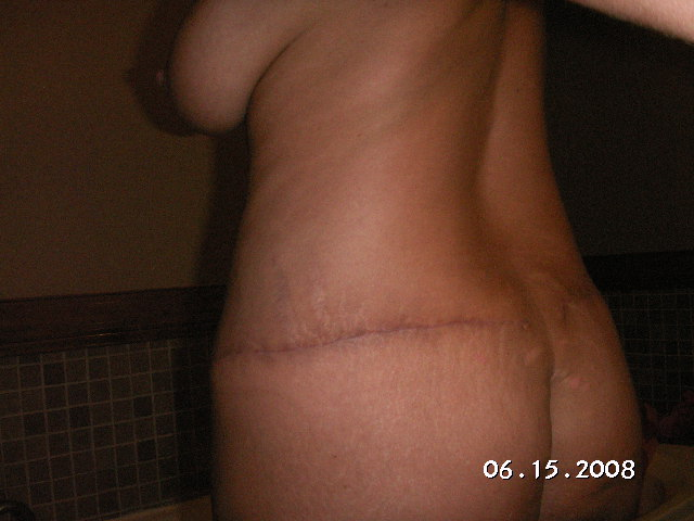 Post Op 3 weeks backside