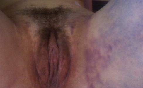 3 weeks post opt - bruising is gone and the clitoral hood is still a little bit swollen.  The swelling comes and goes.