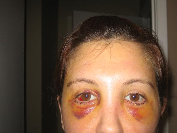 Post Op Vaginoplasty http://www.makemeheal.com/pictures/blepharoplasty/4-days-post-op-2-p76175