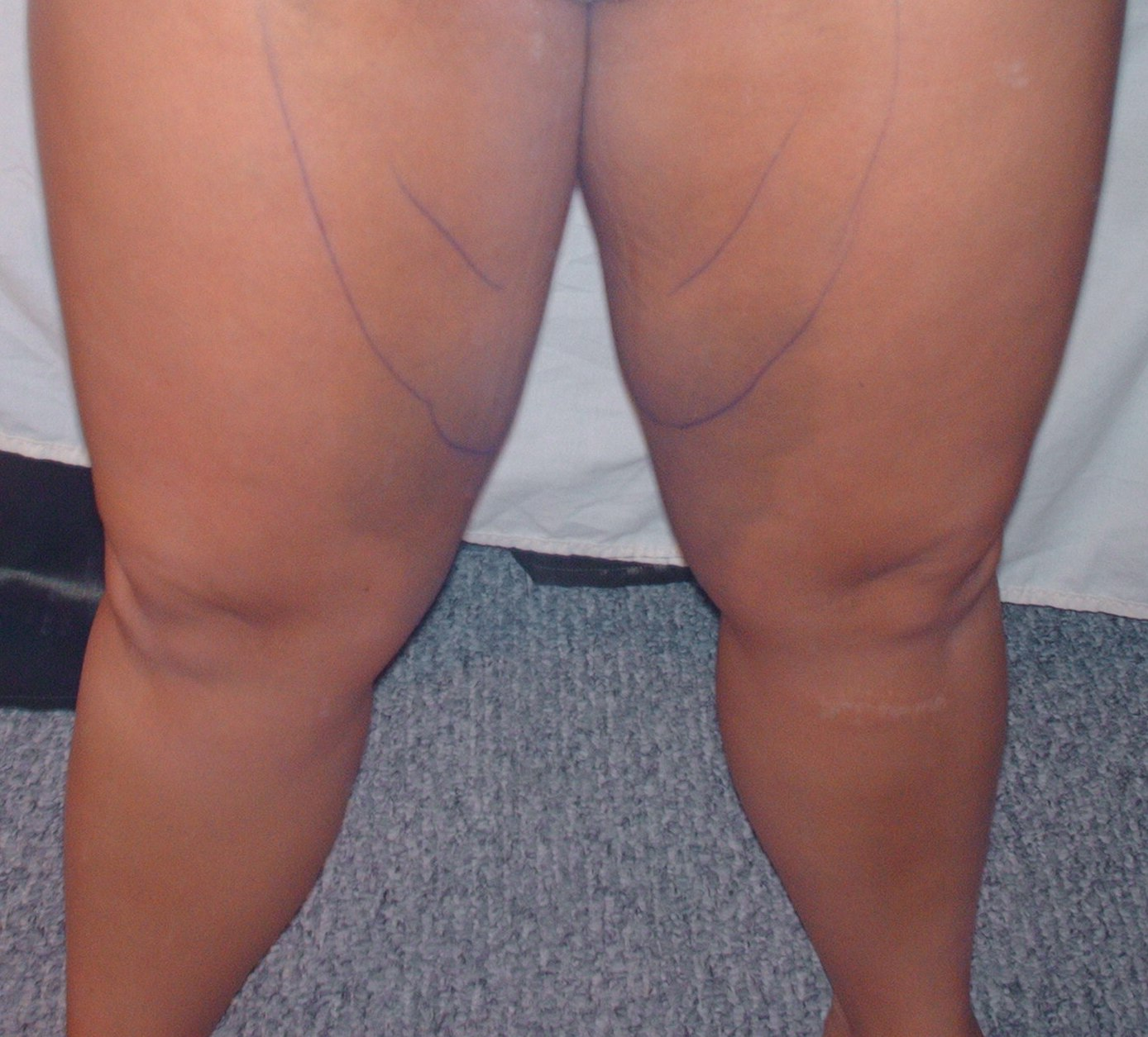 Thighs 4 days after