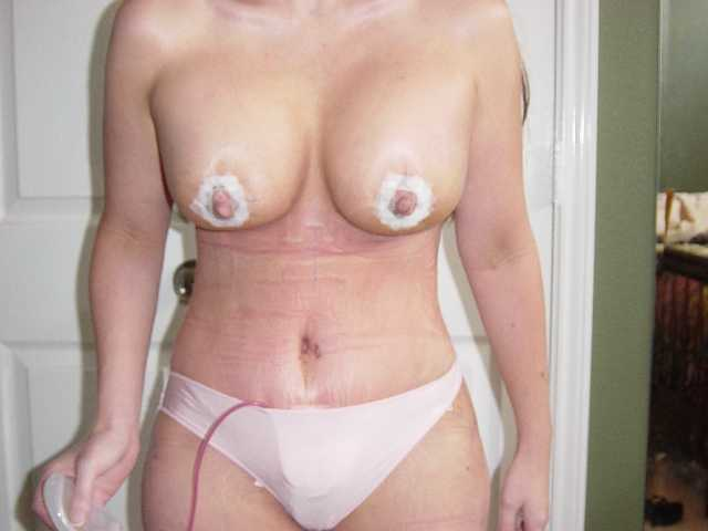 my new body 5 days post op