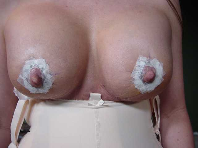 close up of the new girls 5 days post op