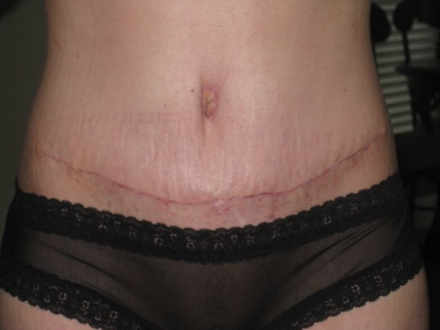 my scar ~ 1 month PO...look how high it is!!