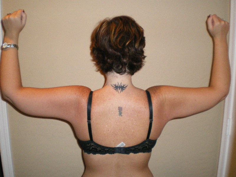 Back of Arms 9 MOS