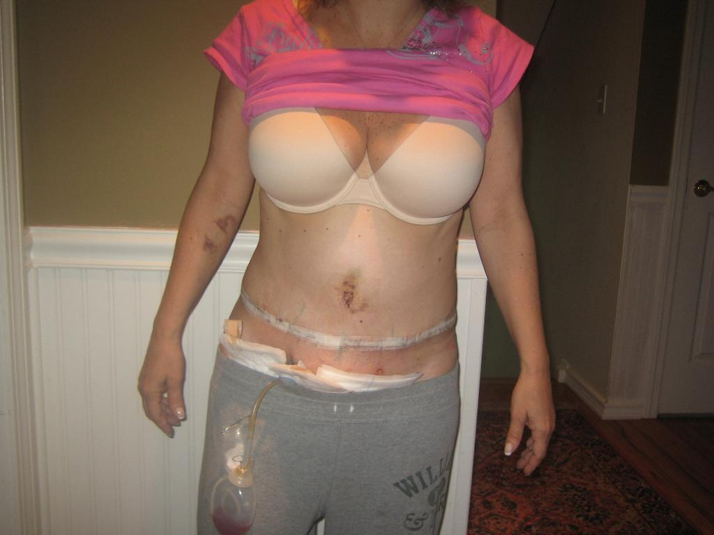 Post Op Vaginoplasty http://www.makemeheal.com/pictures/liposuction/1-week-post-op-swollen-p79386