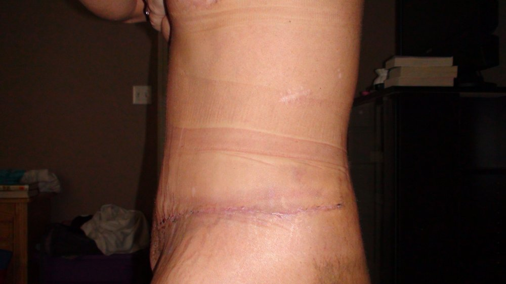 Day 23 Lt side