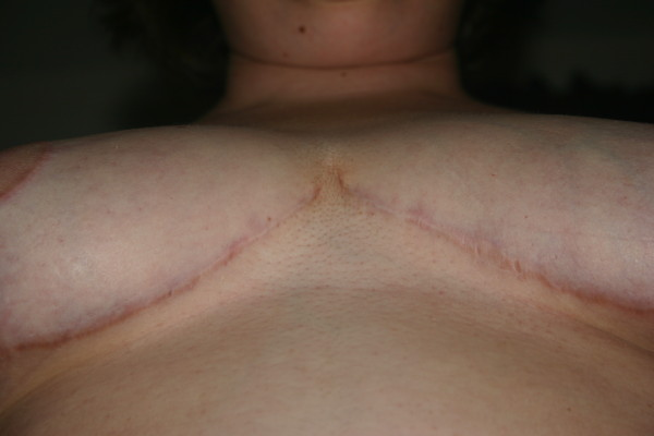 cleavage 6 months scar after silicone sheets
