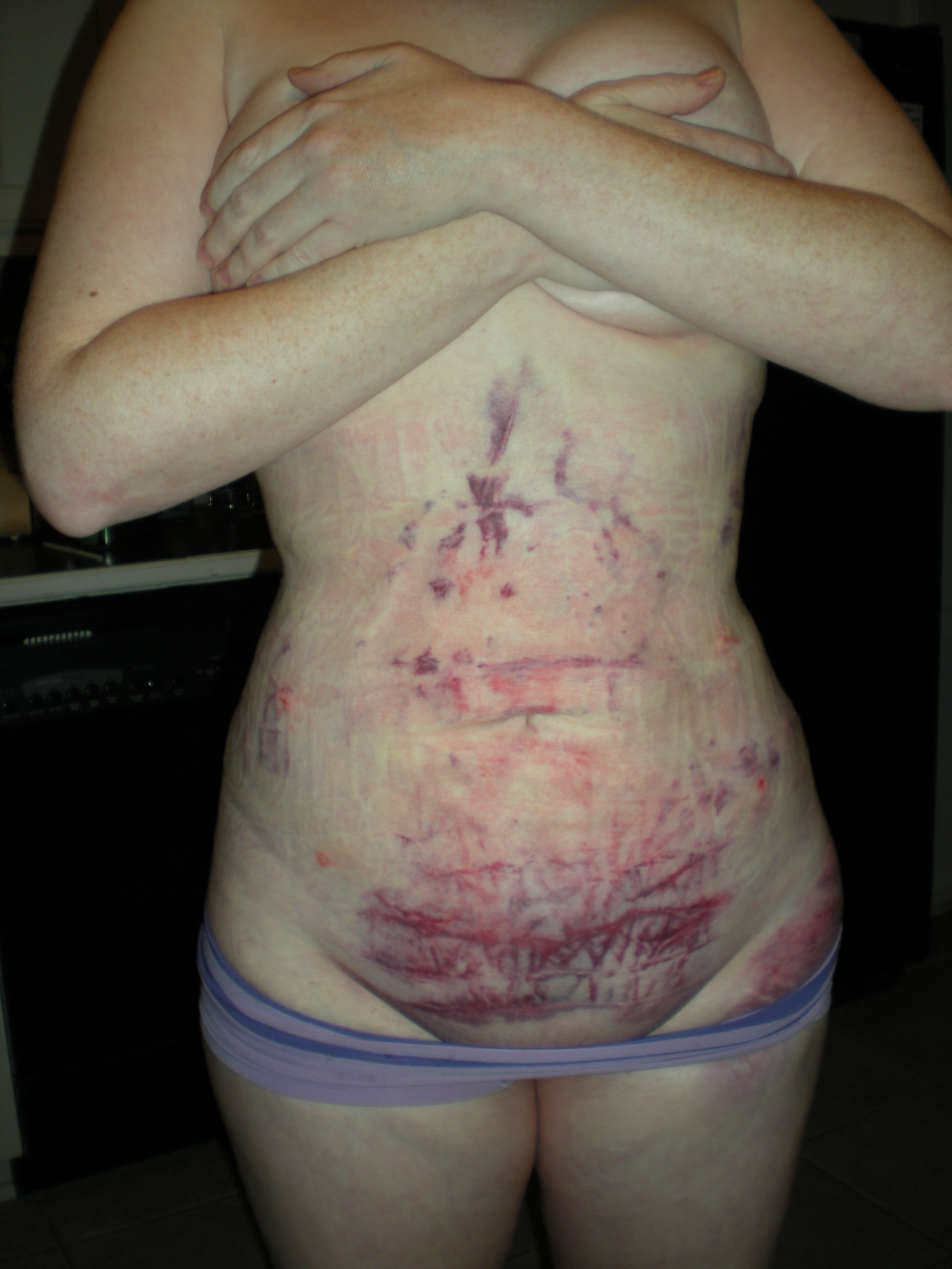 Post Op Vaginoplasty http://www.makemeheal.com/pictures/liposuction/post-op-front-24-hours-p84215