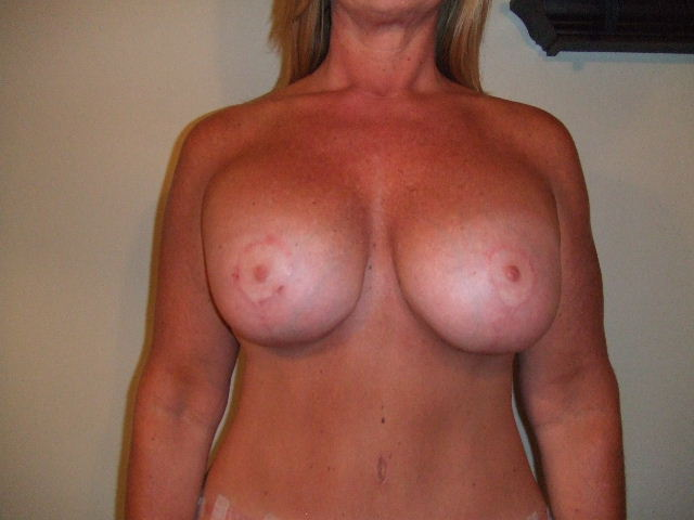 10 weeks after new implants