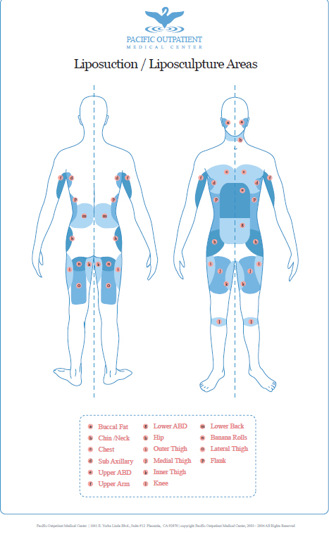 Liposuction Area Diagram