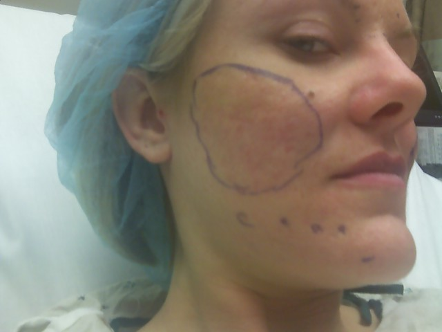 Right Cheek - Before Surgery